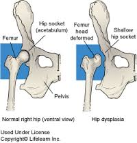 a csípő dysplasia kezelésének jelei mi kezeli a térdízület ízületi gyulladását