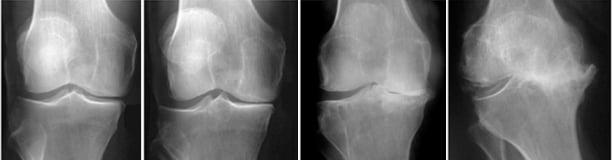 francia ízületi kezelés ízületi fájdalom az alsó hátfájásban