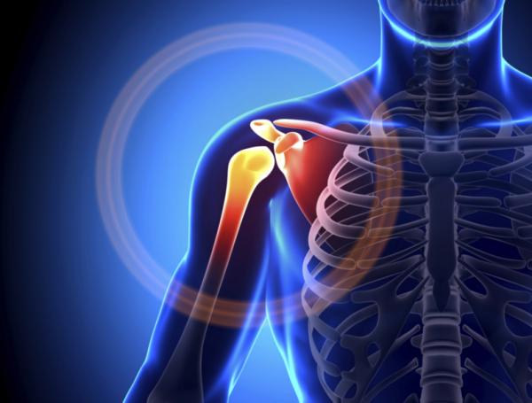csigolyák együttes kezelése rheumatoid arthritis guidelines pdf