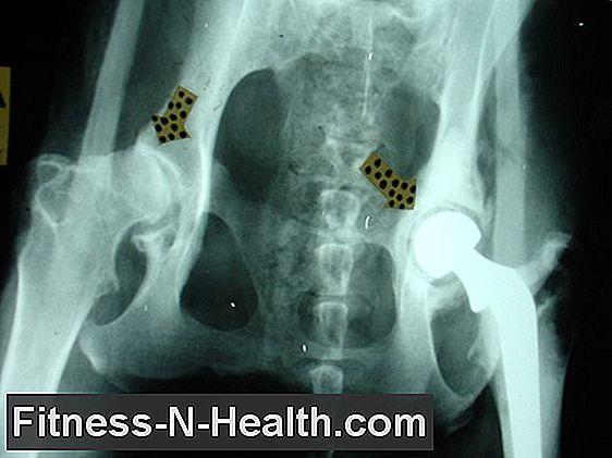 coxarthrosis gonarthrosis és más ízületi betegségek