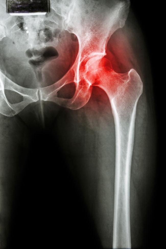 krónikus térdízület izületi fájdalom ampullák