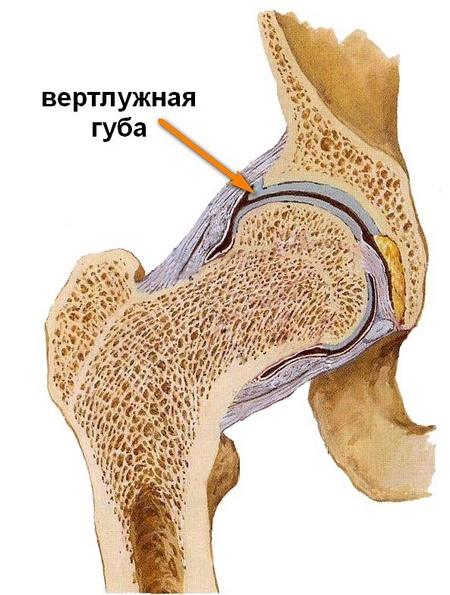 a jobb csípőízület deformáló artrózisa 2 fokkal a csípő gerincízületek betegségei