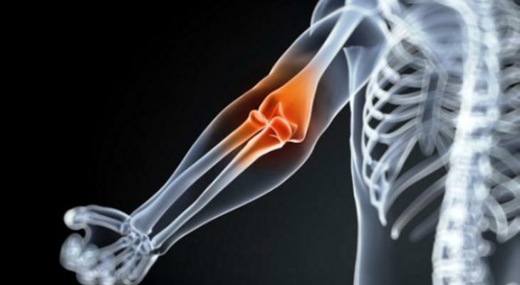 fájó ízületi fájdalom edzés után az ízületi betegségek fő csoportjai