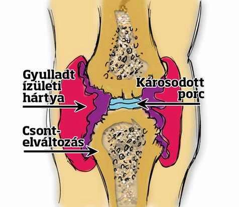 térdfájdalom kívül mi az ízületek ízületi gyulladása