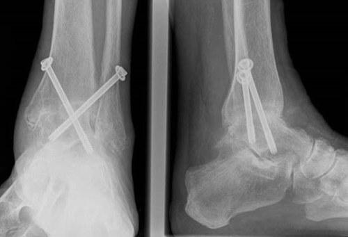 a boka posztraumás deformáló artrózisának kezelése