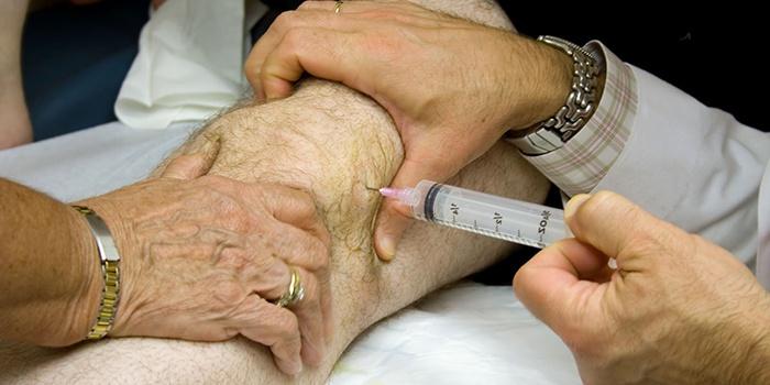 ízületi kondroprotektív kezelés váll fájdalom ütés