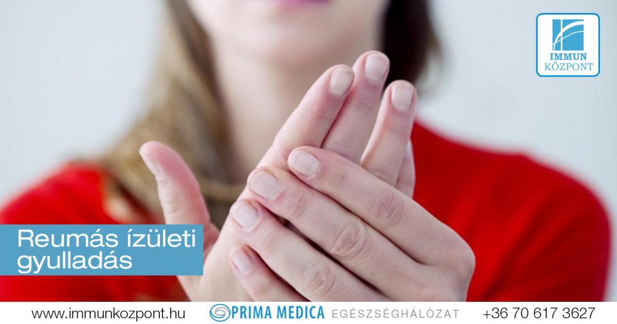 Reumás ízületi gyulladás megelőzése - Egészség | Femina