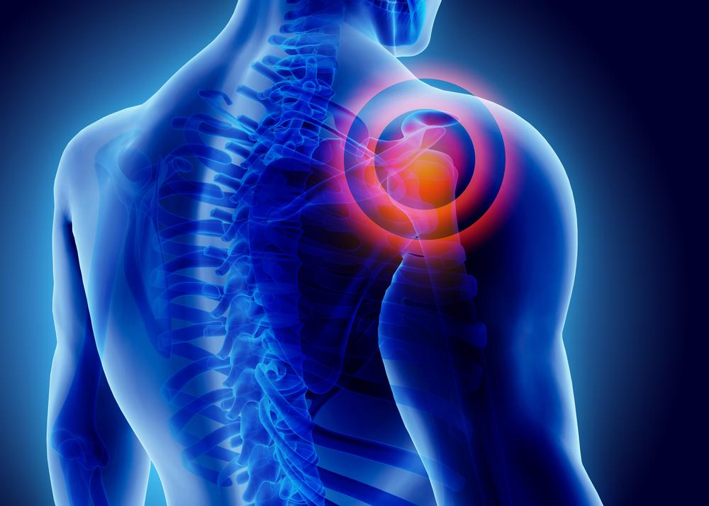 fájdalom a vállízület rehabilitációja során fájdalom a könyökízületben és az izomban