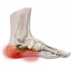 chondroprotektorok a térd artrózisáról