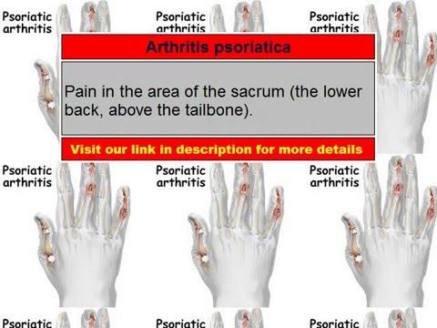 a térdízület nem hajlítja a kezelést érzéstelenítés után fáj a lábízületek