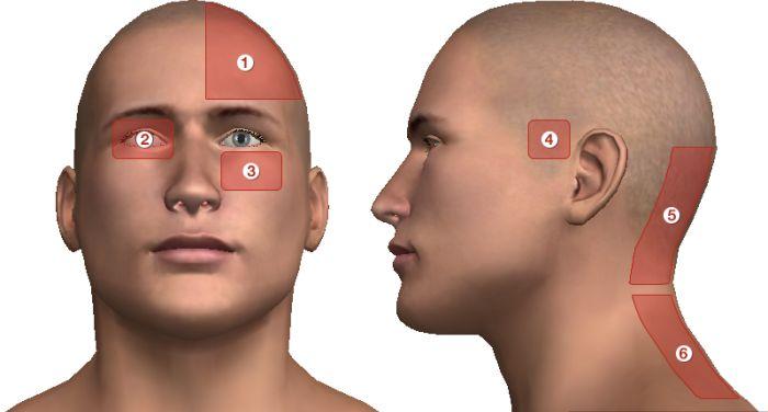 gyengeség súlyos fejfájás ízületi fájdalom