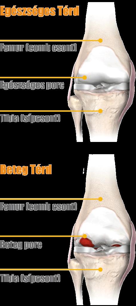 izmok és ínszalagok a térdfájdalom körül fájdalom a csípőízület farokcsontjában