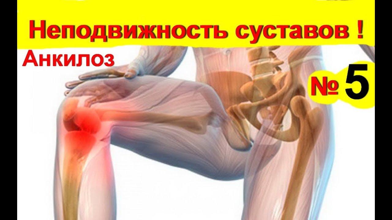 térdmerevségi kezelés milyen gyógynövényeket részeg ízületi fájdalmak miatt