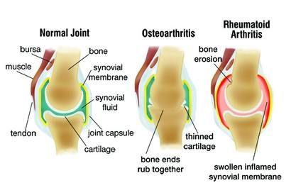 ízületi kezelés artrózisának súlyosbodása
