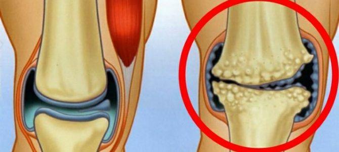 hol kaphatom artrózisos kezelést nyilalló fájdalom az ujjakban