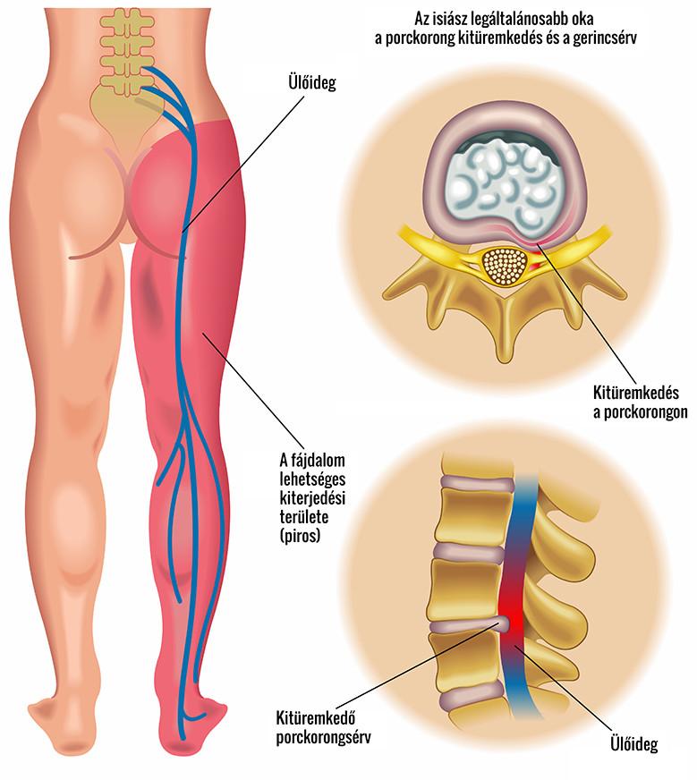 a fájdalom oka a csípőízületben és az alsó lábban