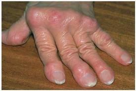 izületi betegségek kezelése