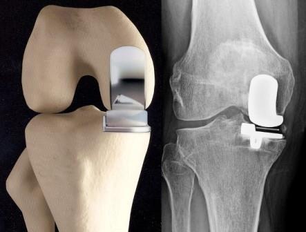 hogyan lehet meghatározni a térd artrózisának fokát