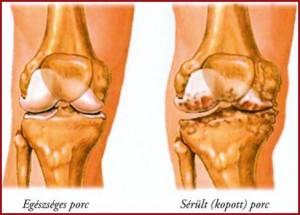 térdízületi defartrosis 3 fokos kezelés fájdalom a bal térd ízületében és a kéz ízületeiben