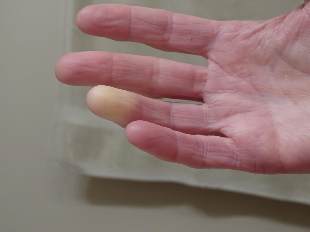 ízületi betegségekkel imádkoznak térdízületi fájdalom vagy injekciók