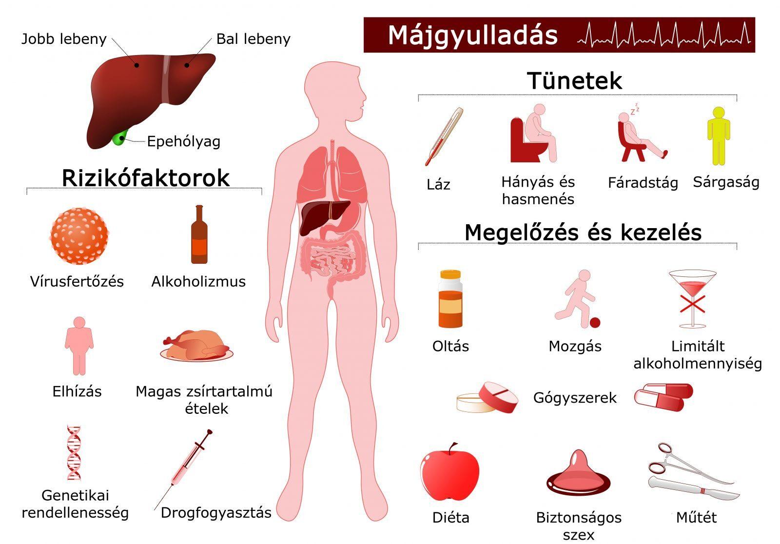 ízületi fájdalom a hepatitis c miatt