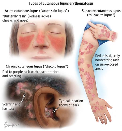 lupus erythematosus ízületi kezelés