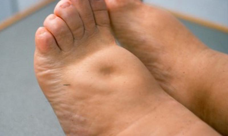 duzzadt lábak ízületei mit kell tenni