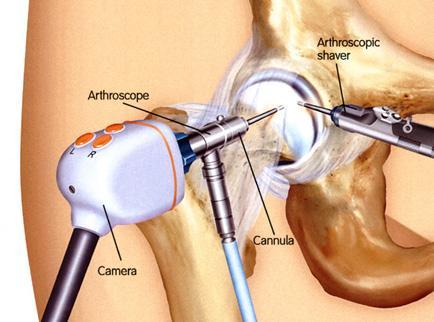 kenőcsök nyaki osteochondrozis kezelésére bojtorján magok ízületi fájdalmak esetén