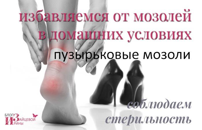 varrásos fájdalom a lábak ízületeiben nem szteroid tabletták ízületi fájdalmak kezelésére