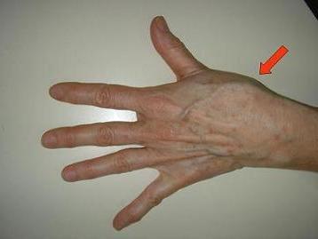 a bal kéz ízületei fájnak