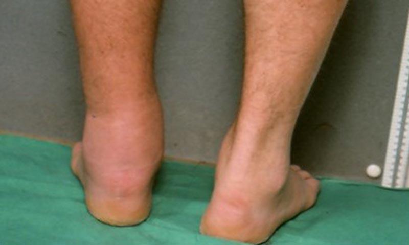 a boka duzzadt izületei csípőfájdalom az ízületi kezelés oldalán