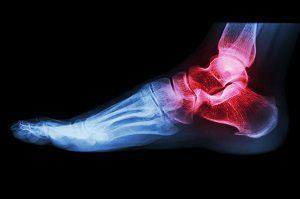 a bokaízület károsodása 2 fokkal