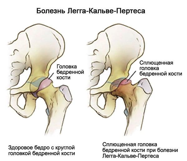 a csípőízület betegségének megnyilvánulása