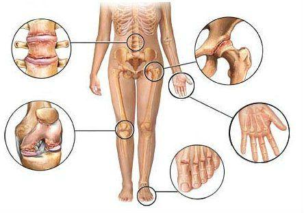 a kezek doa interfalangeális ízületeinek kezelése