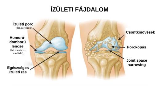 artrózis kezelése és táplálása hogyan kezeljük a lábujjízület gyulladását