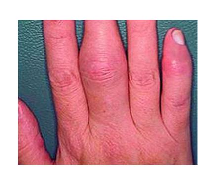 a kéz interfalangális ízületeinek ízületi gyulladása