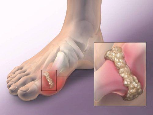 a láb ízületeivel kapcsolatos problémák a boka ízületének 4. fokú ízületi gyulladása
