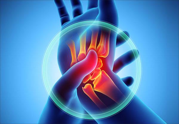 hatékony kezelés brachialis artrózissal