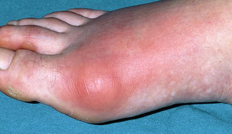 a térd akut artrózisának kezelése