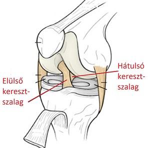 Az elülső keresztszalag sérülésről | kisdunaetterem.hu – Egészségoldal | kisdunaetterem.hu