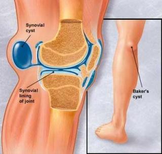 Fájdalom a csípőben, a lábát sugárzó, erős, éles, fájó. Okok és kezelés