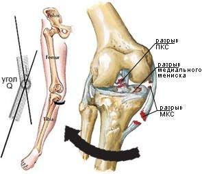 a térdízület kezelésének keresztezett ligamentumainak sérülése a térd artrózisának és ízületi gyulladásának modern kezelése