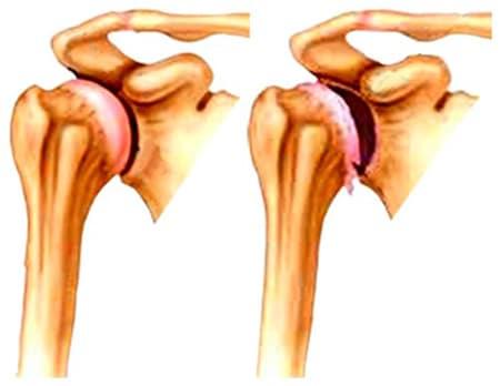 a vállízület artrózisát kezeljük