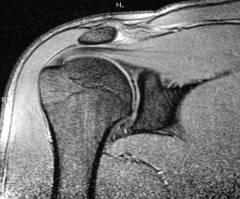 a vállízületek deformáló artrózisa