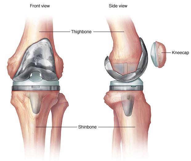 az összes ízület artrózisa egyszerre fájdalom a hátsó térdízületekben