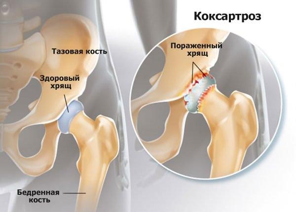 térdízület 2. fokú deformáló artrózisa