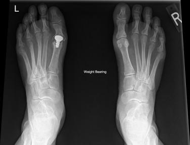 osteoarthritis of 1st metatarsophalangeal joint icd 10)