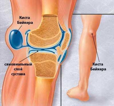 könyök-ínbetegség a bal vállízület kezelése myositis esetén