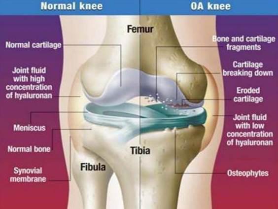 karipain térd artrózissal ízületi fájdalom gyermekek oltásakor