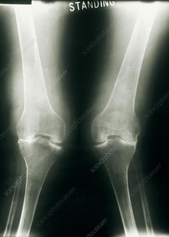stroke - radiology